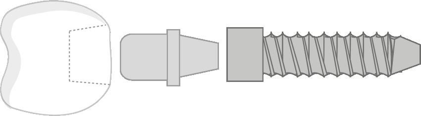 Explosionszeichnung Aufbau eines Implantats