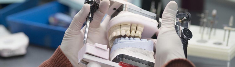 Herstellung Implantate