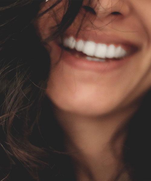 Ausschnitt lachendes Gesicht (auf Mund und Zähne fokusiert)